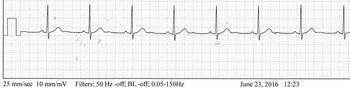 my EKG.jpg